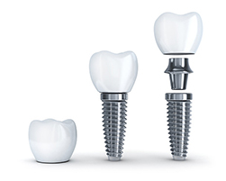 Diagram of a dental implant at West End Dental, in Portland, OR