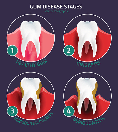 Diagram of the stages and symptoms of gum disease and advanced periodontitis