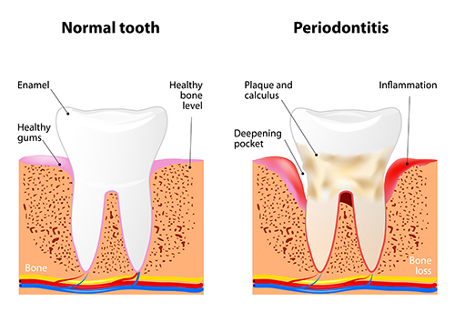 Illustration of a tooth with periodontal disease, in need of scaling and root planing, at dentist office in Portland, OR.