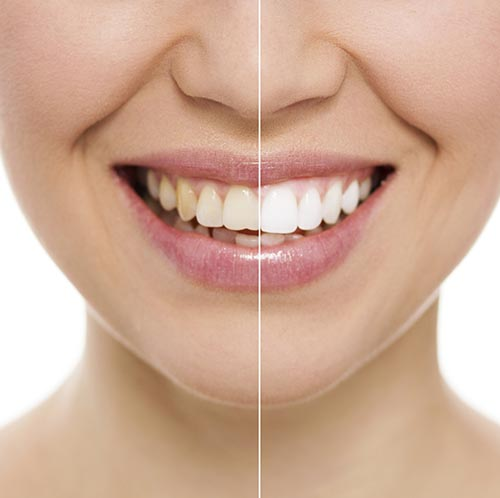 Before and after smile after Teeth Whitening procedure at West End Dental