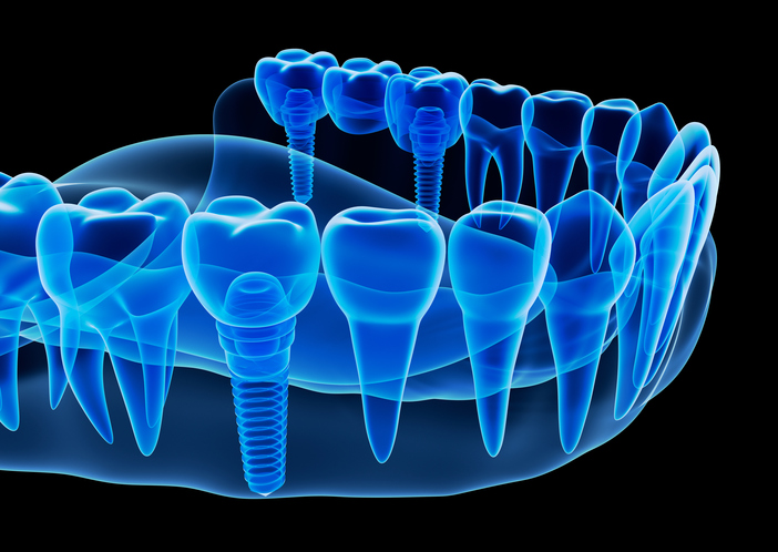 Dental Implant at West End Dental, in Portland, OR